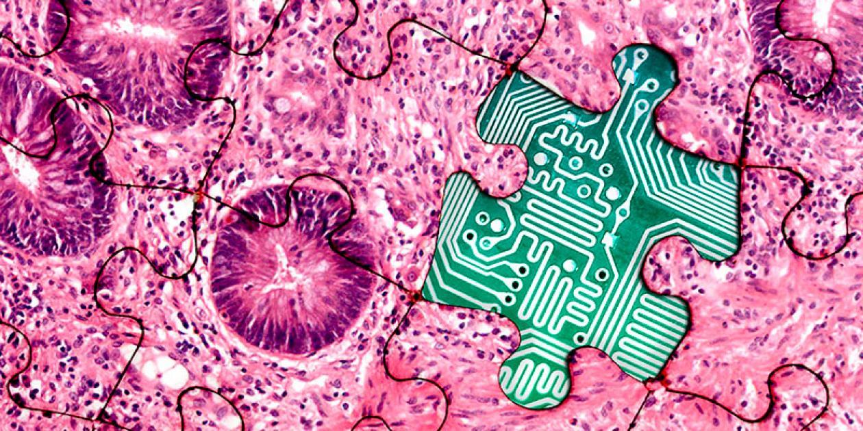 Convenio del Hospital del Mar y TIC Salut social para avanzar hacia la Patología Digital