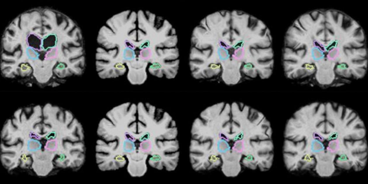 Investigadores del MIT desarrollan herramienta de IA que compara imágenes en 3D